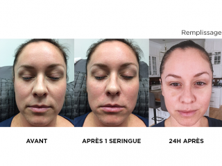 injectables-skins-montreal
