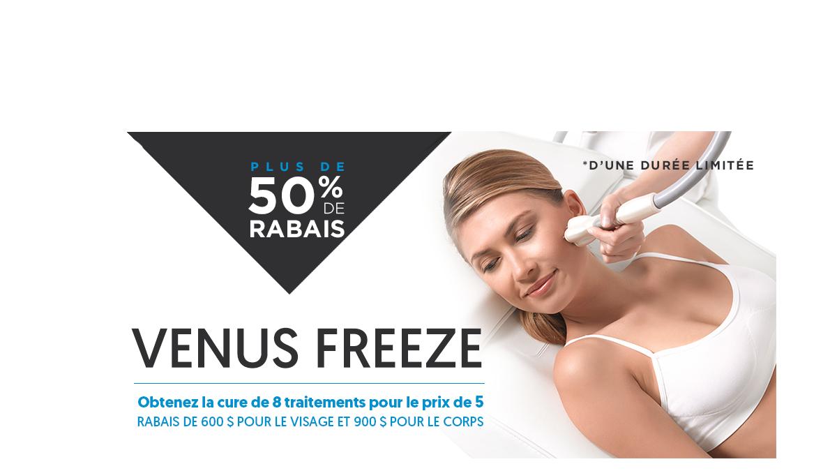 venus freeze