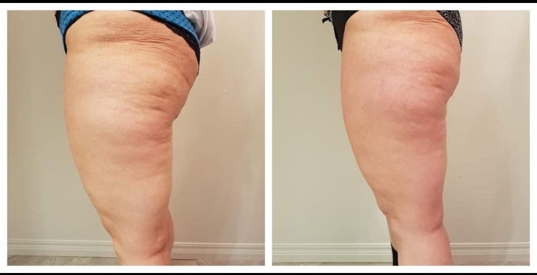 liposculting cuisse