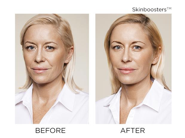 skinbooster-skins-montreal-brossard