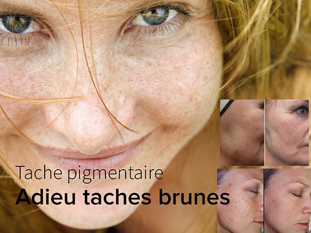clinique-catherine-esthetique-taches-pigmentaires