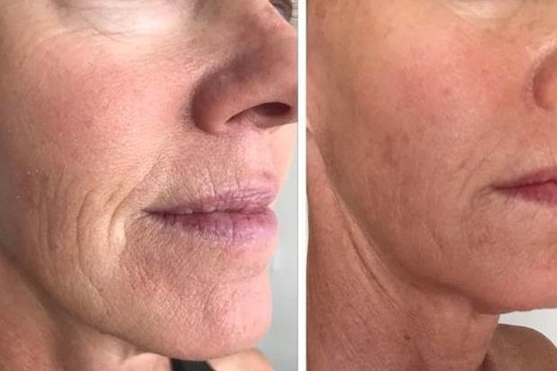 soin-visage-infusion-oxygene-1
