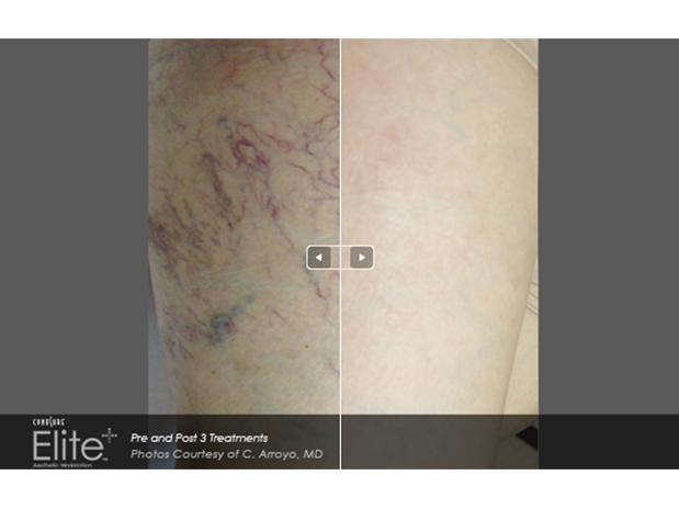 skins-traitement-varicosites