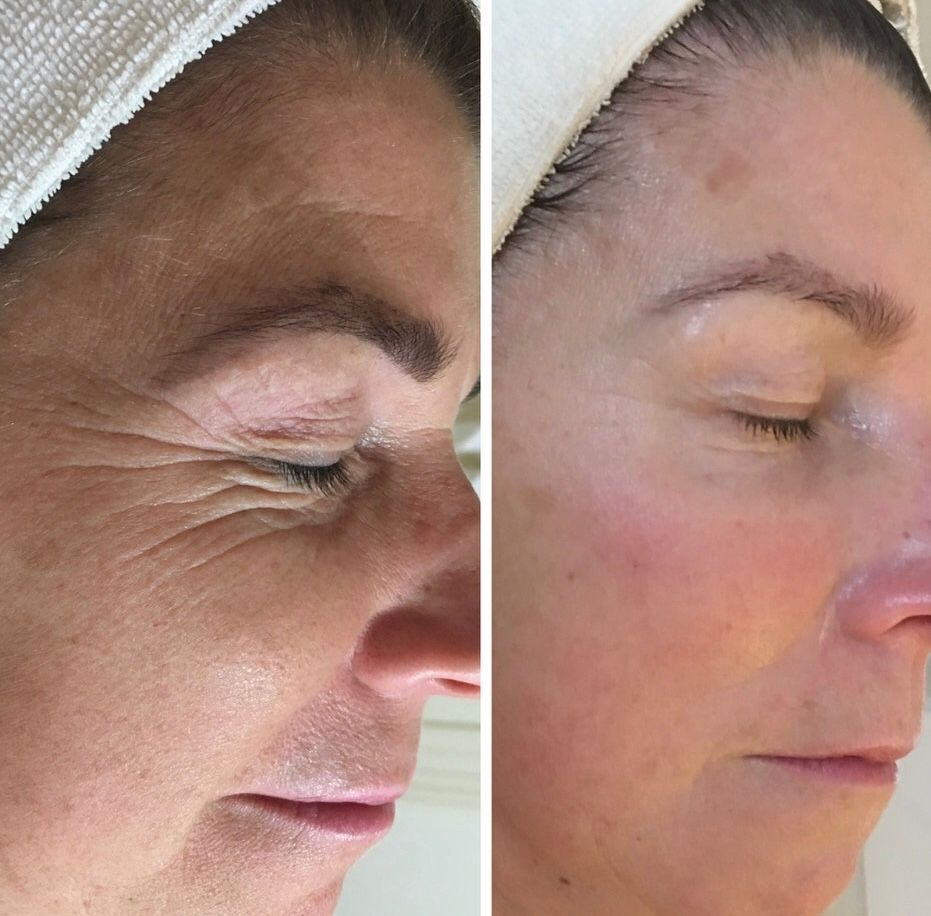 soin-visage-infusion-oxygene-2