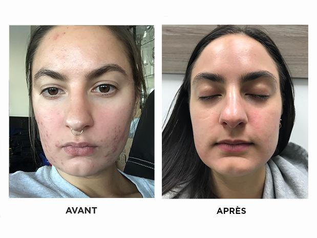 acné-skins-montreal-brossard