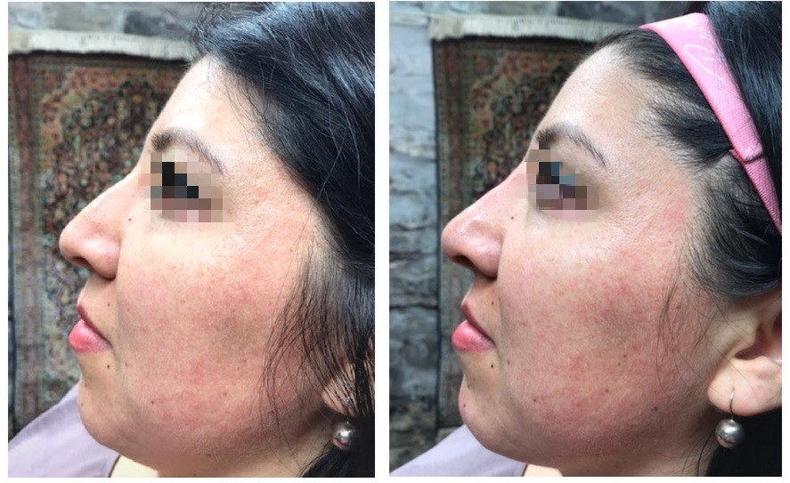 Before - After nose correction