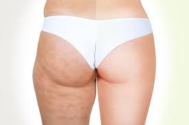 formation-extension-cils-soin-cellulite-montreal