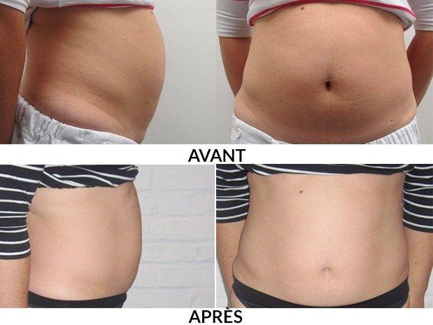 soin-Venus Freeze-skins-brossard-montreal