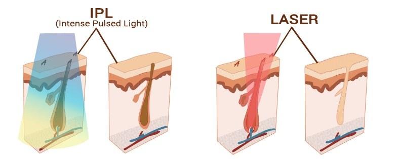 epilation-laser-ipl-clinique-jonquiere