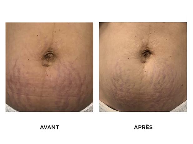 soin-Venus Freeze-Vergetures-skins-brossard-montreal