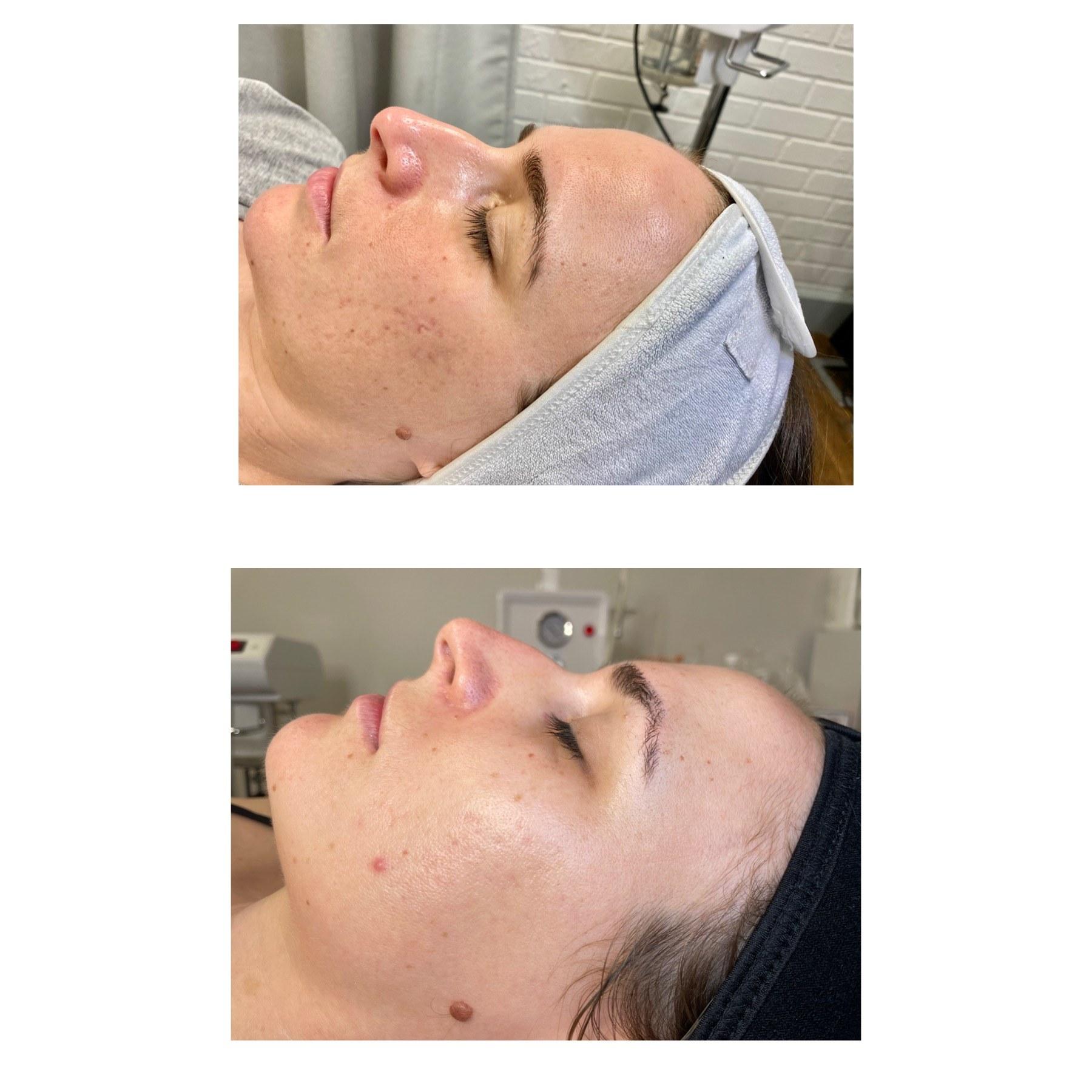 mesotherapie-clinique-montreal