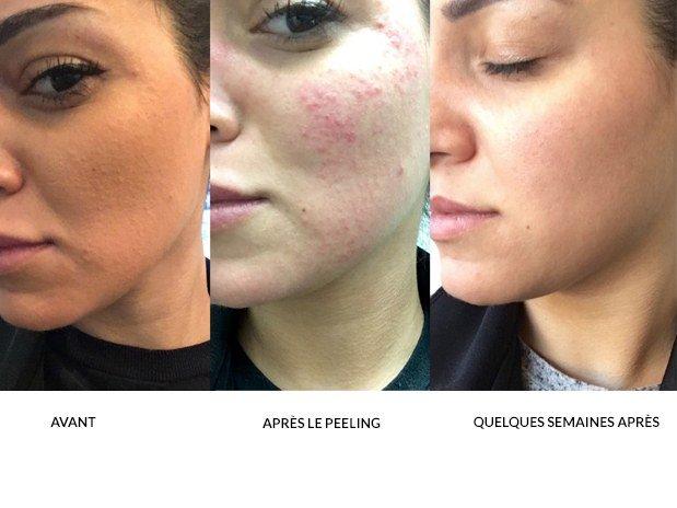soin visage peeling 31c52c4e7ad