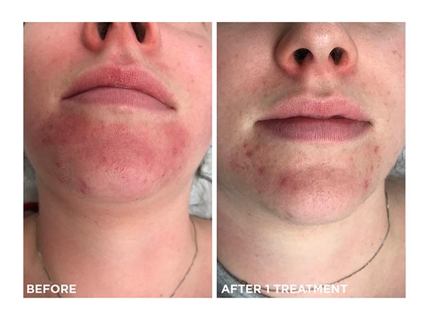 couperosis-acne-photofacial-skins-montreal-brossard