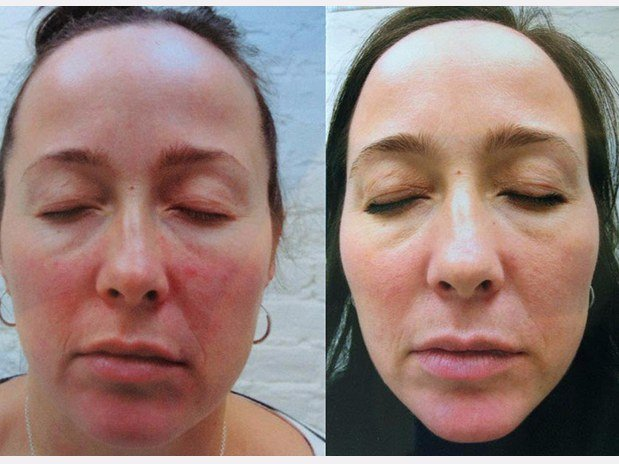 PHOTORAJEUNISSEMENT – PHOTOFACIAL