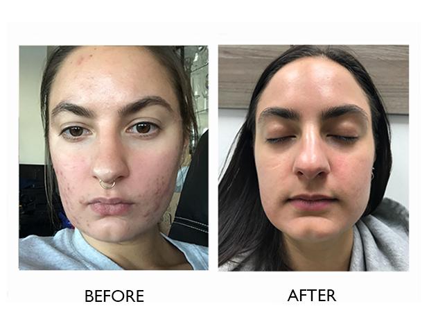 targeted-facials-skins-montreal-brossard