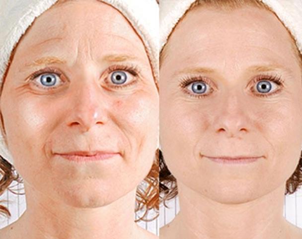 RMD Face Lift