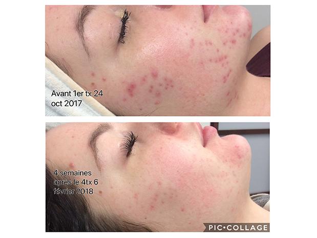 skins-blogue-acné