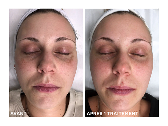 taches-pitmentaires-photofacial-skins