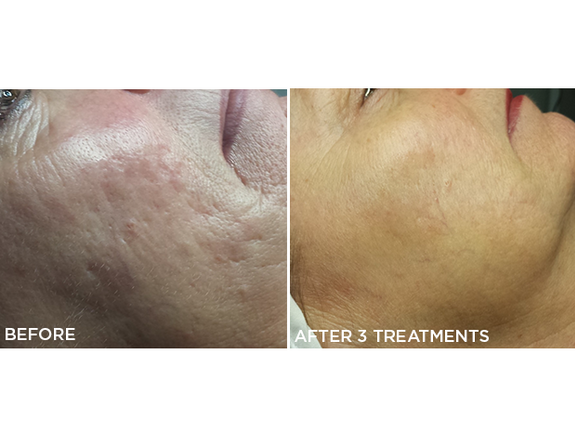 Microneedling (Facials - Microneedling) of Espace Skins Montreal