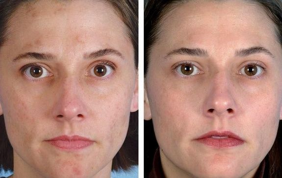 microdermabrasion-clinique-catherine-jonquiere-3