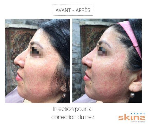 Avant-Après Injection correction nez