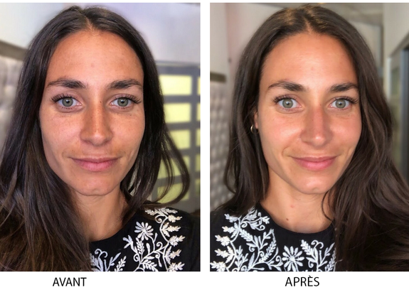 intraceuticals-oxygen-facial-montreal