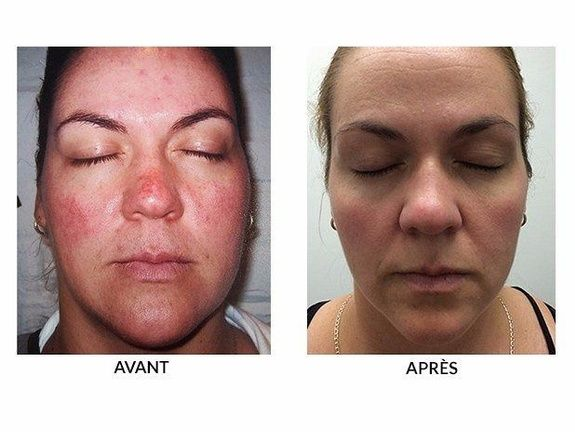 Facial in laser montreal