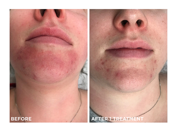 couperosis-acne-photofacial-skins-montreal-brossard