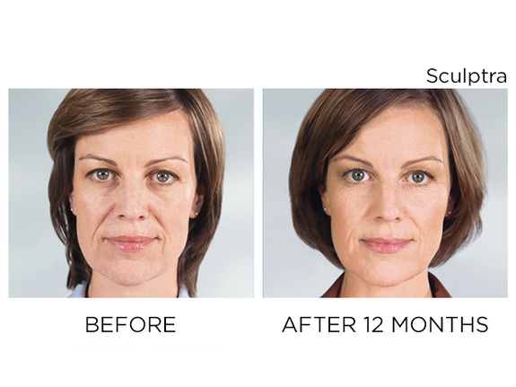 sculptra-before-after